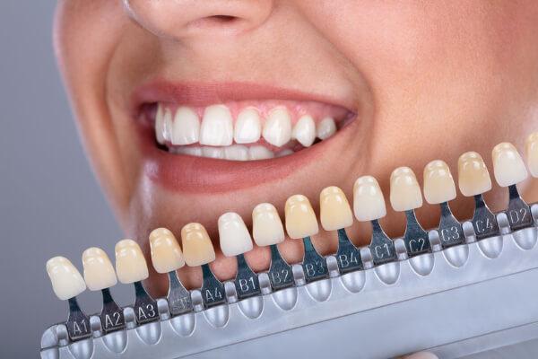 Zahnfarbauswahl - ein besonderer Service von Ihrem Dentallabor in Homburg