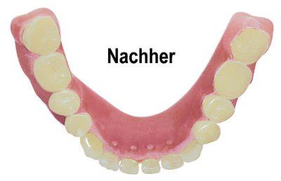 Weyand Dentallabor Prothesenreinigung - nachher